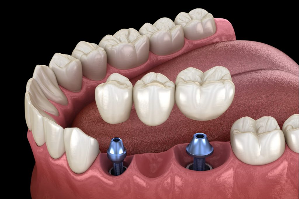 Dental Implants Vs. Bridge