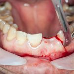 Bone graft for dental implants: What to expect