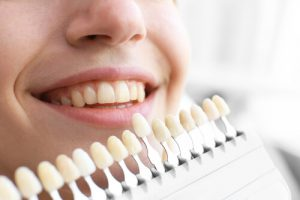 other teeth whitening procedures