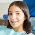 How much do braces cost a month?