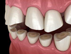 bruxism teeth
