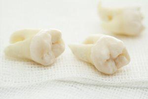 broken wisdom tooth