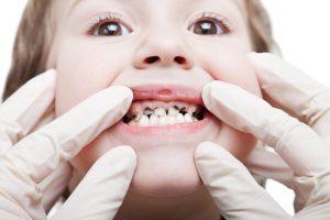 teeth gap due to thumb sucking