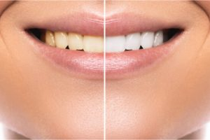 before and after whitening procedure