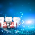 modernized dental implants