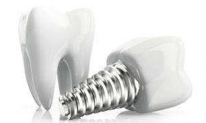 sample dental implants