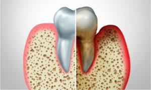 periodontitis in teeth