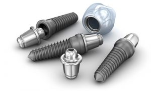 actual dental implants