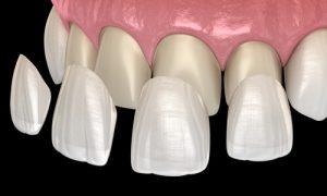 placing veneers in front teeth
