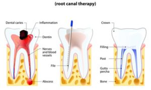 root canal therapy for your tooth pain